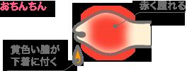 亀頭包皮炎の原因・症状 イラスト